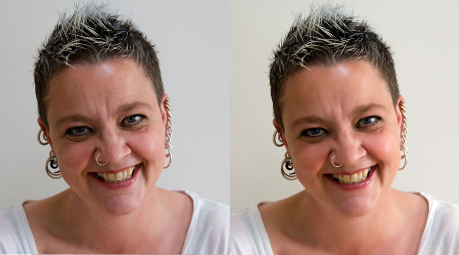 Angie, before and afetr Beauty Box treatment